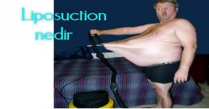 liposuction-nedir